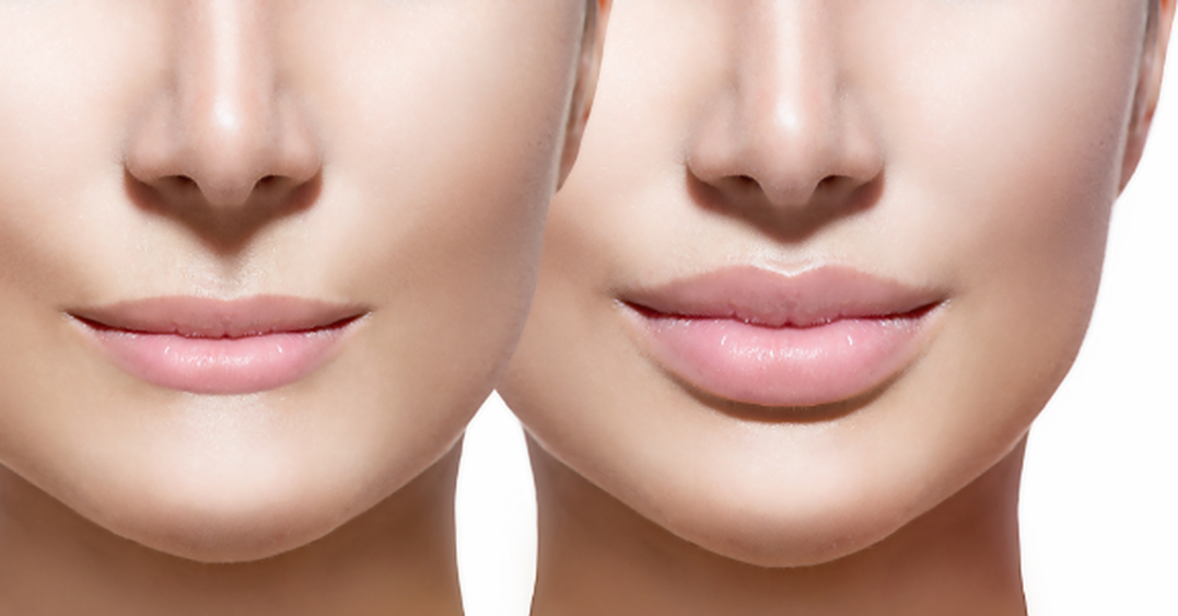 Extra Volumen Lippenpflege